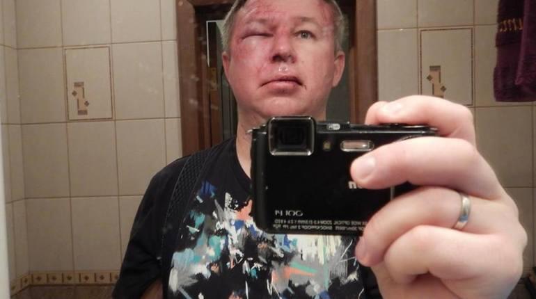 В Петербурге трое неизвестных жестоко избили правозащитника Динара Идрисова