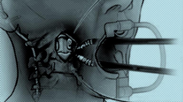Робот помог медиками удалить раковую опухоль впозвоночнике
