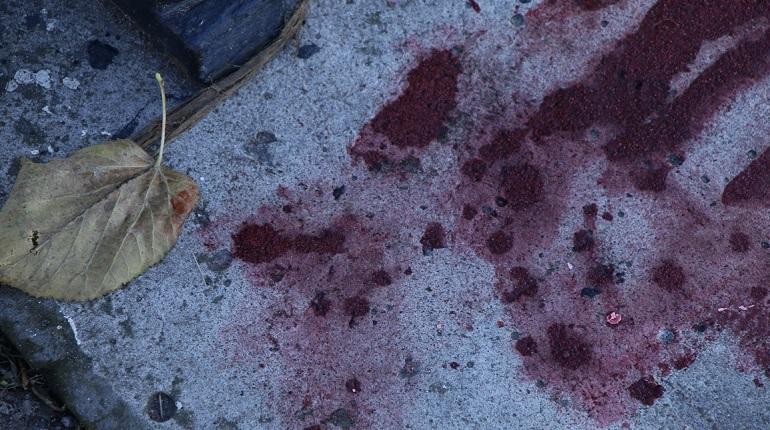 Полиция возбудила дело из-за избиения активиста в Песочном