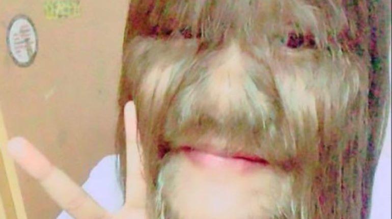 Самая волосатая девушка в мире нашла любовь всей жизни